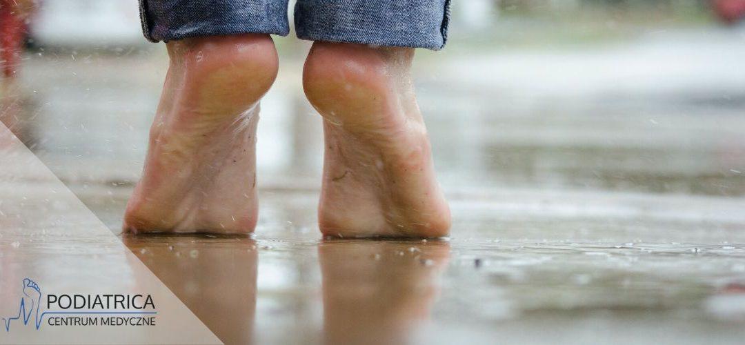 Nadmierna potliwość stóp. Jak sobie z nią radzić?