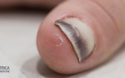 Uszkodzona macierz paznokcia. Jak odbudować paznokieć?