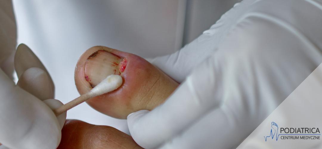 Kostka Arkady – leczenie wrastających paznokci