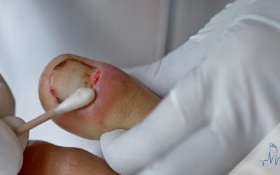 Leczenie wrastających paznokci. Kostka Arkady