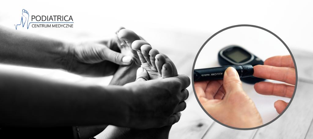 Cukrzyca a paznokcie – z jakimi problemami zmaga się diabetyk?