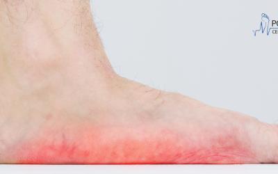 Płaskostopie poprzeczne – objawy, przyczyny i leczenie
