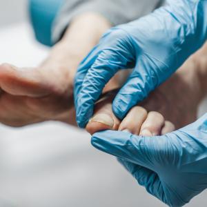 szkolenie plastyka palców