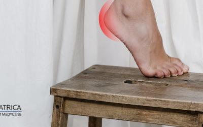 Ostroga piętowa – leczenie i przyczyny