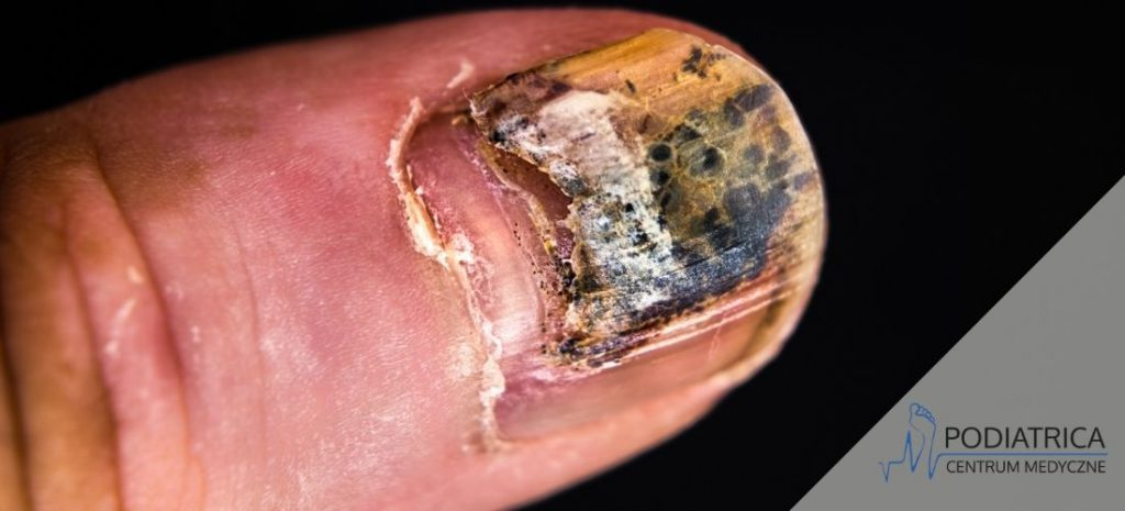 schodzący paznokieć