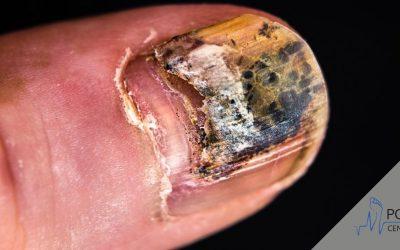 Co zrobić ze schodzącym paznokciem?