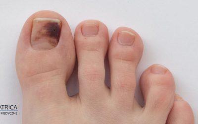 Krwiak pod paznokciem – kiedy wymaga konsultacji z podologiem?