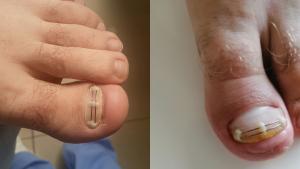 Gummetal przed i po